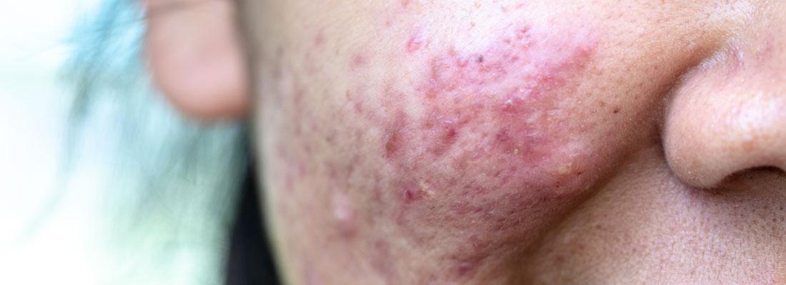 Traitement  psoriasis du visage